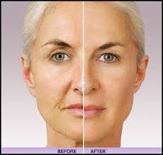 Williamsville Dermal Fillers